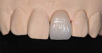 E-max 高槻の歯医者