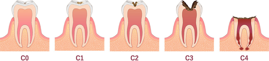 虫歯のメカニズムImages 08