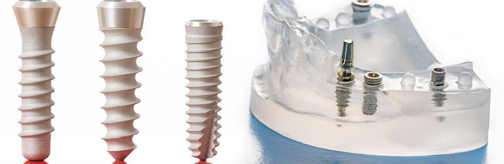 インプラント 高槻の歯医者