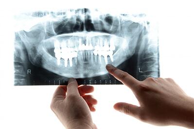 インプラントの構造 高槻の歯医者