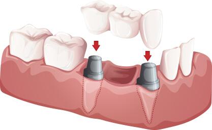 高槻の歯医者Images 08