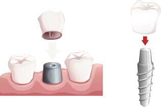 高槻の歯医者Images 09