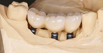 インプラントセット 高槻の歯医者