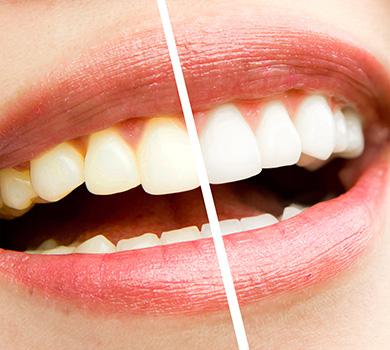 高槻の歯医者Images 02