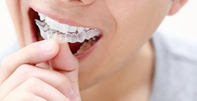 ホームホワイトニング 高槻の歯医者