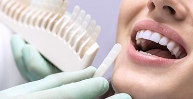 デュアルホワイトニング 高槻の歯医者